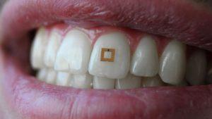 Minúsculo Sensor Usado nos Dentes Pode Ajudá-lo a Ser Mais Saudável