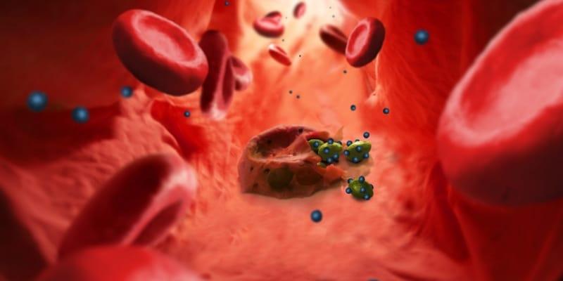 Inteligência Artificial Acelera Combate a Malária