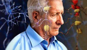 A França está Construindo uma Aldeia para Pessoas com Alzheimer